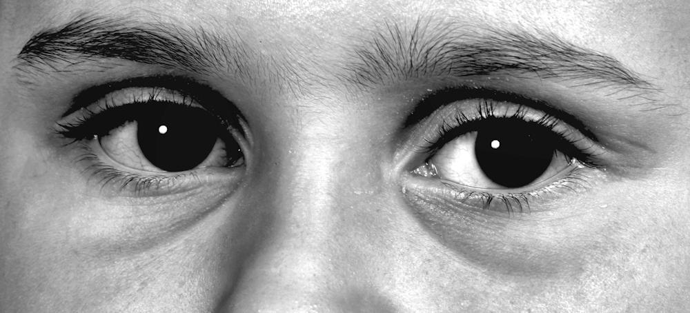 VALISE_002 - Grosses valises sous petts yeux
